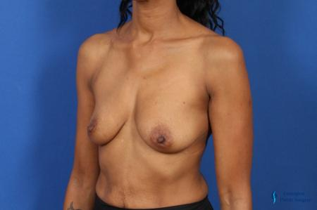 Breast Augmentation: Patient 8 - Before Image 4