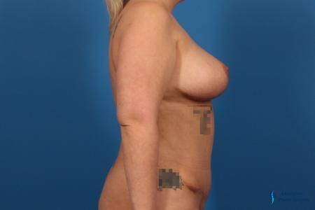Abdominoplasty: Patient 2 - After Image 5