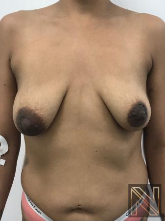 Breast Lift: Patient 1 - Before Image 1