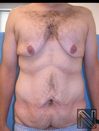 Gynecomastia: Patient 9 - Before Image