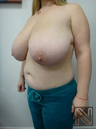 Breast Reduction: Patient 9 - Before Image 2