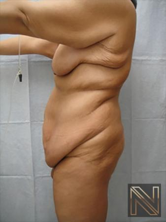 Abdominoplasty: Patient 17 - Before Image 2