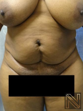 Mini Tummy Tuck: Patient 1 - Before Image