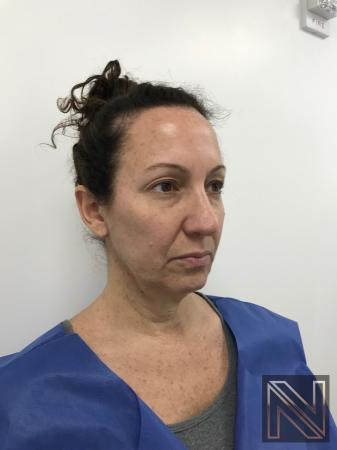 Facelift/Mini Facelift: Patient 3 - Before Image