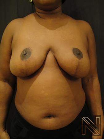 Breast Reduction: Patient 3 - After Image