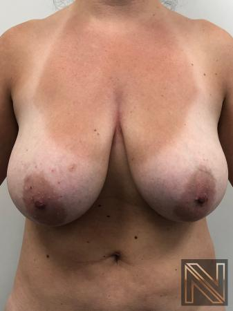 Breast Lift: Patient 8 - Before Image 1