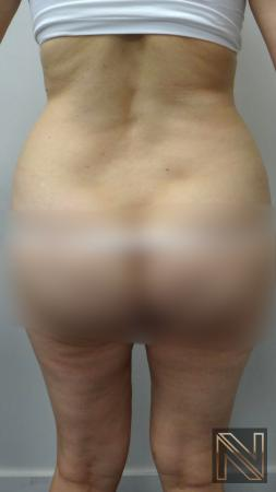 Liposuction: Patient 12 - Before and After 2