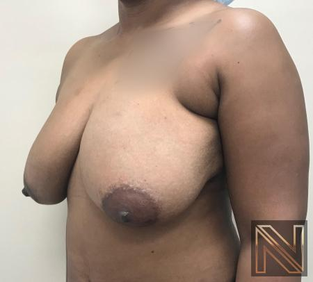 Breast Lift: Patient 14 - Before and After Image 3