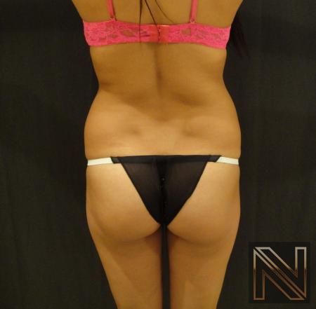 Liposuction: Patient 23 - Before 1
