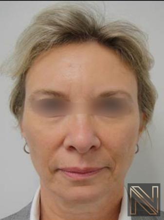 Liquid Facelift: Patient 6 - After Image 1