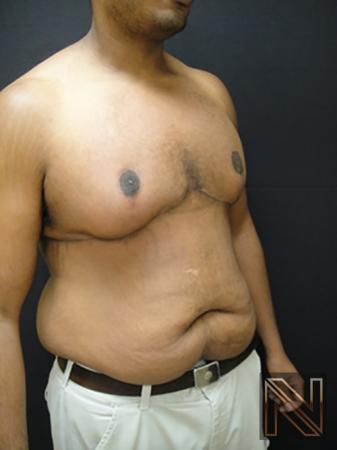 Gynecomastia: Patient 1 - After 3