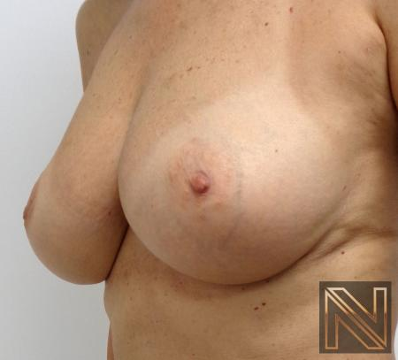 Fat Transfer - Body: Patient 1 - After 1