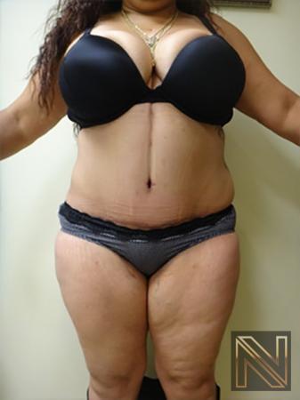 Abdominoplasty: Patient 11 - After Image 1