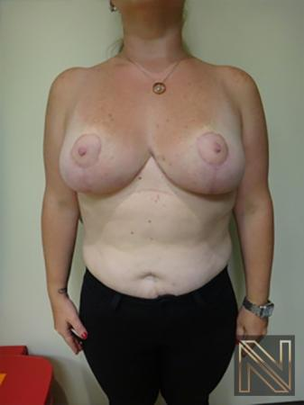 Breast Reduction: Patient 9 - After Image 1