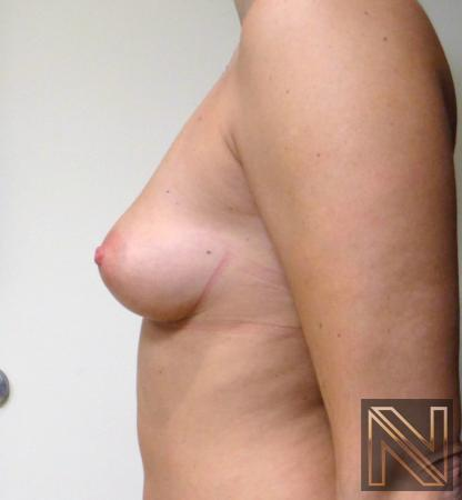 Fat Transfer - Body: Patient 3 - After Image 2