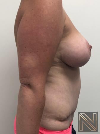 Abdominoplasty: Patient 28 - After Image 3