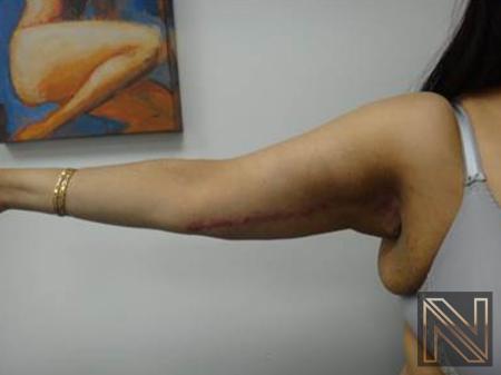 Brachioplasty: Patient 3 - After Image 2