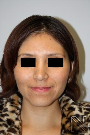 Rhinoplasty: Patient 5 - After Image