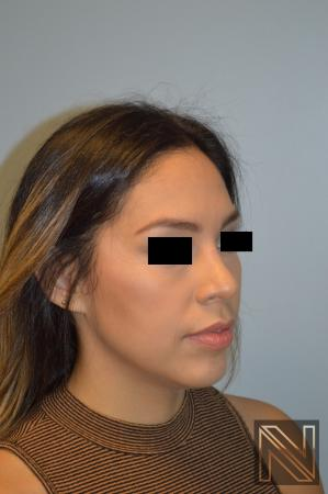 Rhinoplasty: Patient 6 - After Image 5