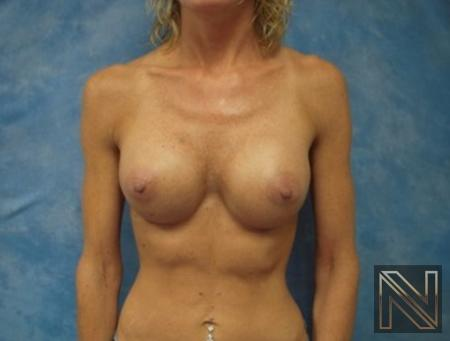Breast Augmentation: Patient 20 - After Image 1