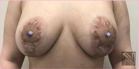 Breast Lift: Patient 9 - Before 1