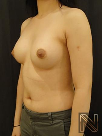 Breast Augmentation: Patient 4 - After Image 2
