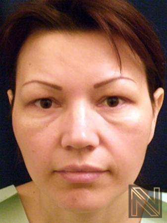 Blepharoplasty: Patient 4 - Before Image