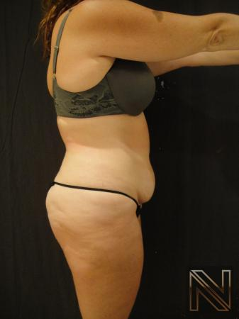 Mini Tummy Tuck: Patient 6 - Before and After 2