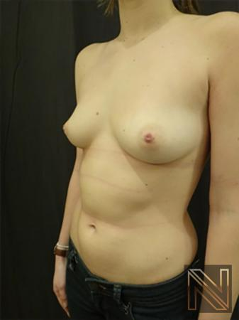 Inverted Nipple Surgery: Patient 3 - Before 2