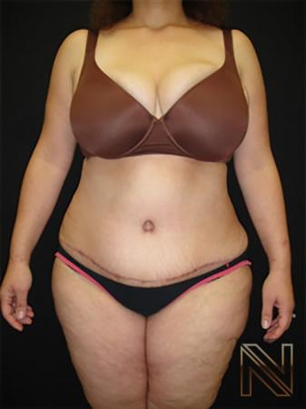 Abdominoplasty: Patient 19 - After Image 1