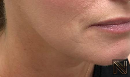 Fillers: Patient 14 - After Image 1
