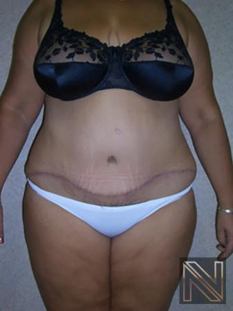 Abdominoplasty: Patient 4 - After Image