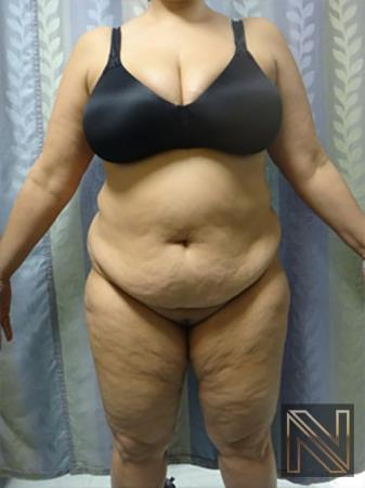 Abdominoplasty: Patient 14 - Before Image 1