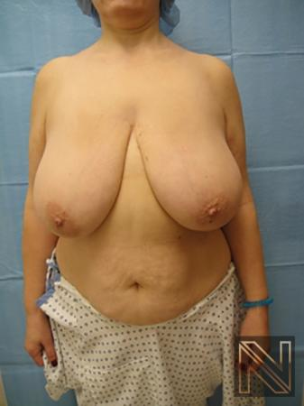 Breast Reduction: Patient 8 - Before Image