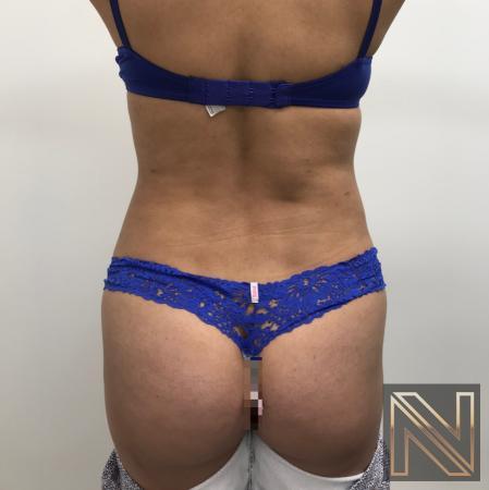 Liposuction: Patient 23 - After 1