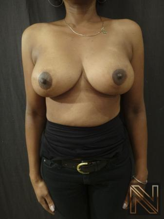Breast Lift: Patient 2 - After Image 1