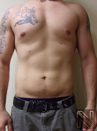 Liposuction: Patient 14 - After 1