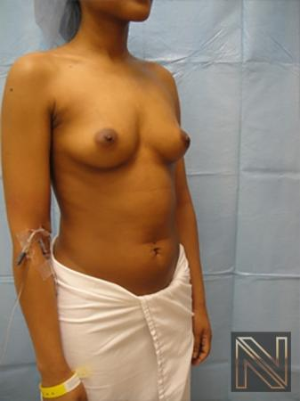 Breast Augmentation: Patient 14 - Before Image 3
