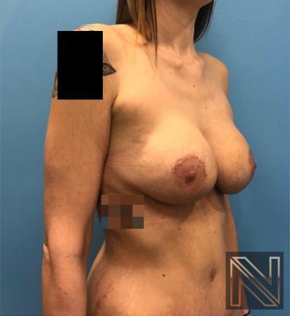 Abdominoplasty: Patient 31 - After Image 2