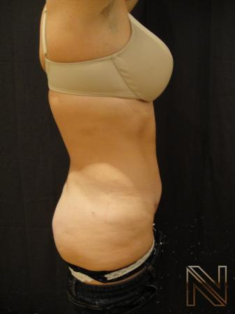 Mini Tummy Tuck: Patient 6 - After Image 2