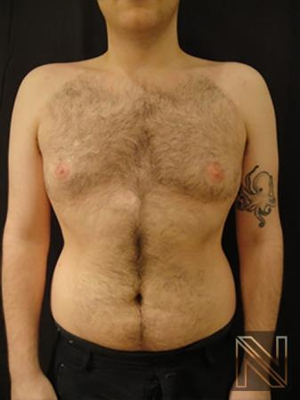 Gynecomastia: Patient 5 - After Image