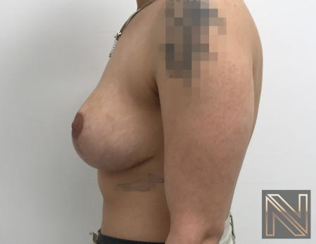 Breast Lift: Patient 17 - After 4