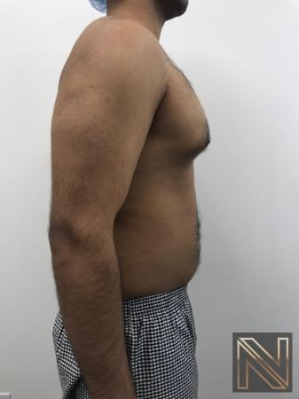 Gynecomastia: Patient 7 - Before and After Image 5