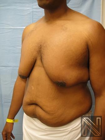 Gynecomastia: Patient 1 - Before 2