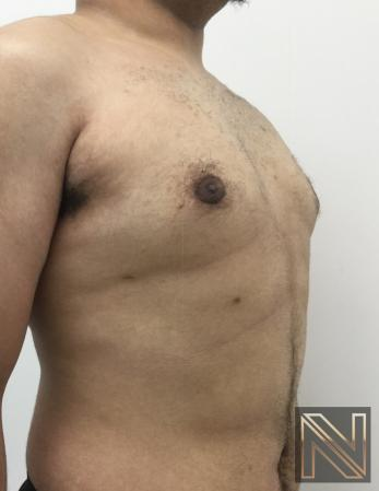 Gynecomastia: Patient 10 - After Image 4