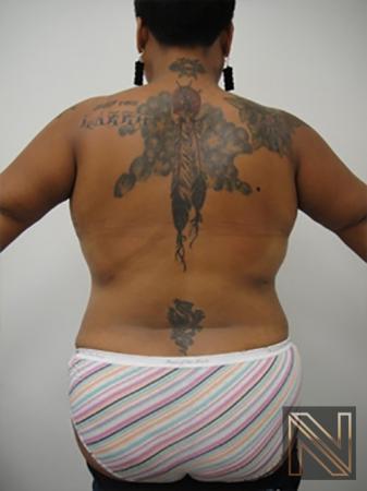 Liposuction: Patient 19 - After Image 1