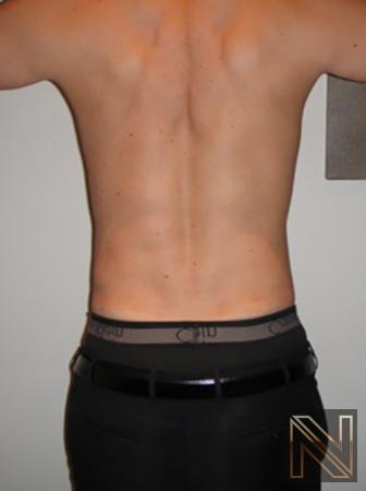 Liposuction: Patient 20 - After Image 1