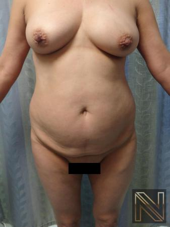 Mini Tummy Tuck: Patient 8 - Before Image 1
