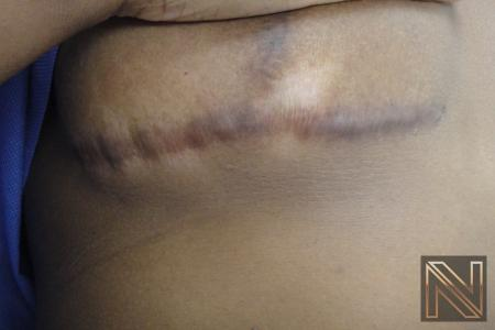 Fractional Resurfacing: Patient 9 - Before Image