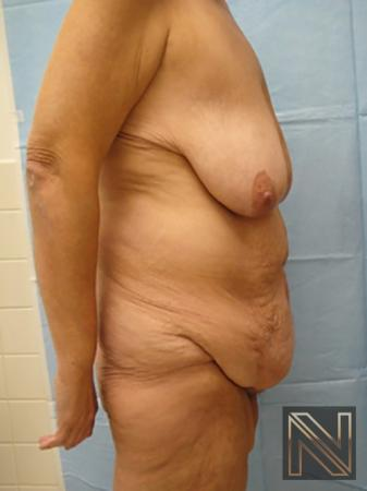 Abdominoplasty: Patient 3 - Before and After Image 3